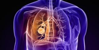 प्रदूषणामुळेच आशियाई देशात कर्करोगाची वाढ
