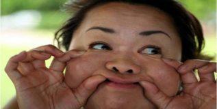 चेहर्यावरची चरबी या उपायांनी करा कमी