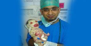 नागपूरात जन्मले 'जेनेटिक डिसऑर्डर' बाळ