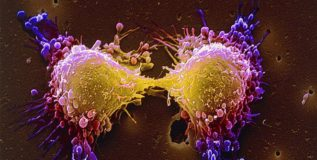 'कॅन्सर सेल्स' होऊ शकतात केवळ दोन तासांत नष्ट !