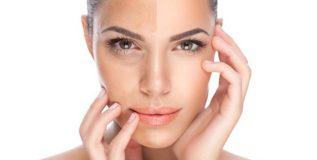 त्वचेवरील पिग्मेंटेशन आणि त्यावरील उपायांबाबतचे गैरसमज