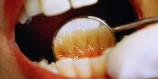 दातांचा पिवळेपणा कमी करण्यासाठी ..