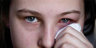 कन्जन्क्टीव्हायटीस ( डोळे येणे ) पासून असा करा आपला बचाव