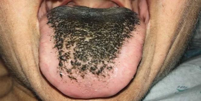 tounge1