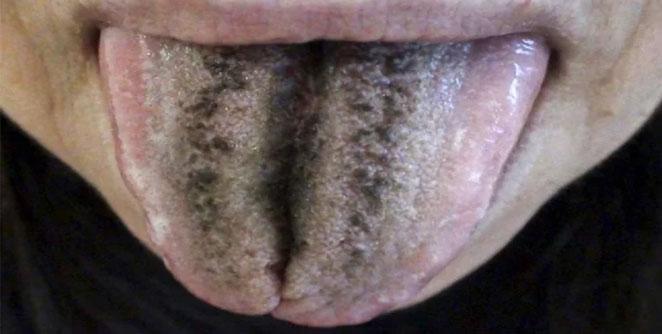 tounge2
