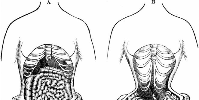 Tapeworm-Diet1
