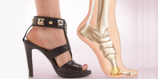 उंच टाचांचे सँडल करतील पायांचे नुकसान